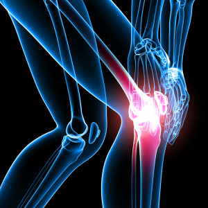 Chondroitin Sulfate for Arthritis Pain Relief
