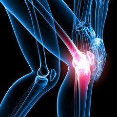 Arthritis Today – Chondroitin Sulfate